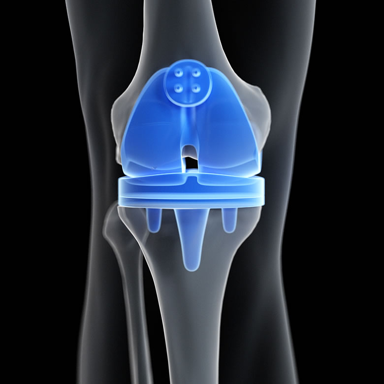 Knee replacement prodecure