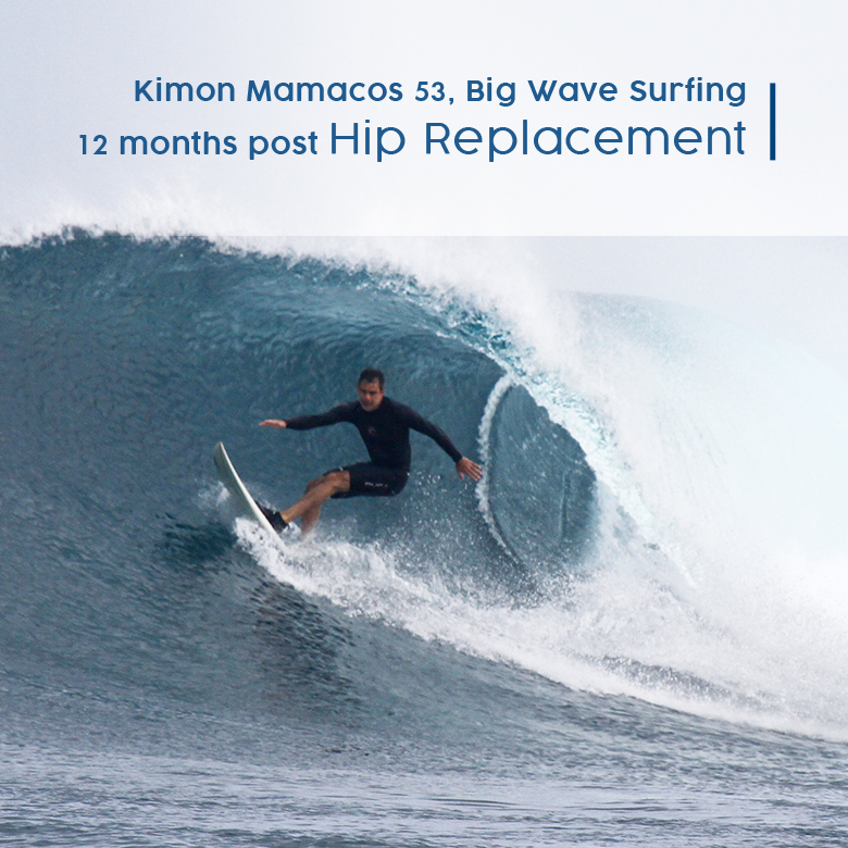 hip replacement testimony, big wave surfing