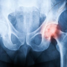 The Ins & Outs of Hip Replacement Surgery