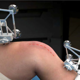 knee surgery decision